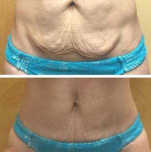 ultraslim-skin-tightening-pic1