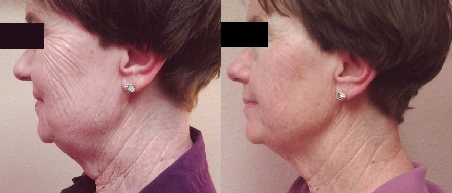 non-invasive-facelift