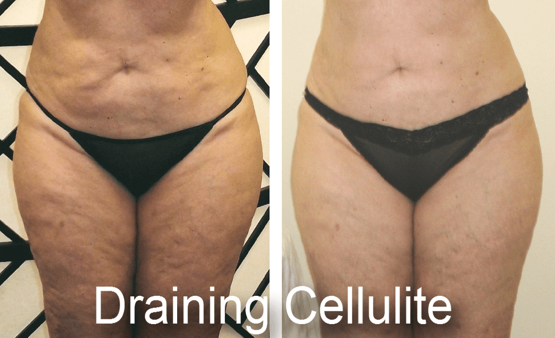 ultraslim-before-after-10